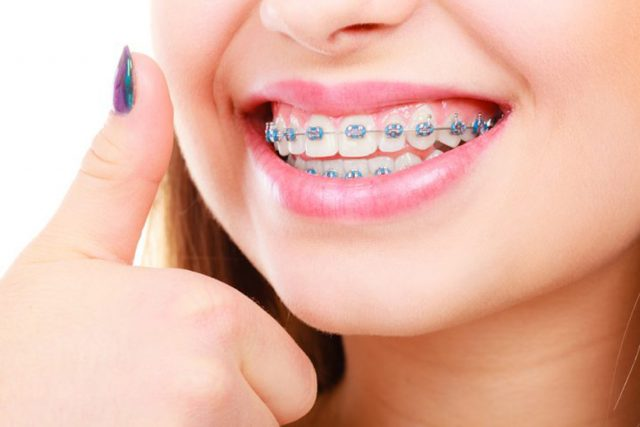 Why Do People Get Braces E1570072761133